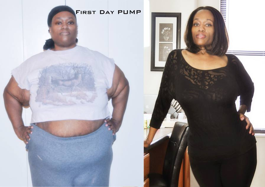Veronica Spriggs before and after